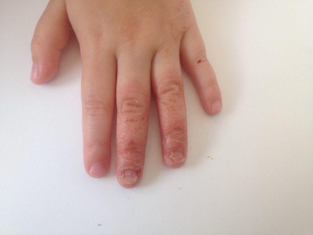 Как вылечит грибок ногтя на руке у ребенка