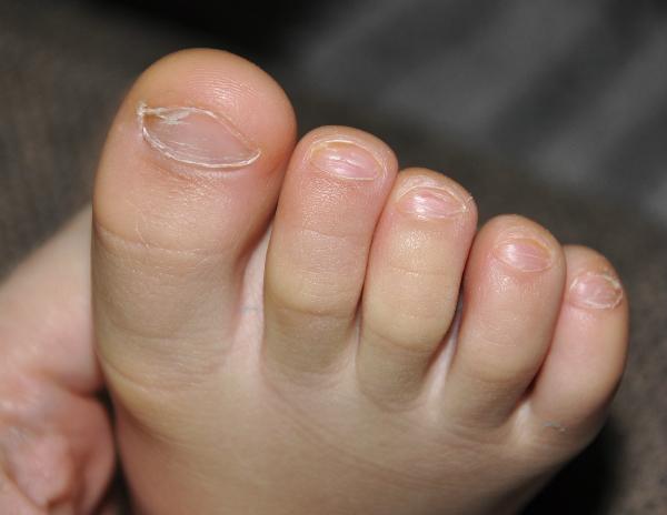Купить пластины для лечения ногтя