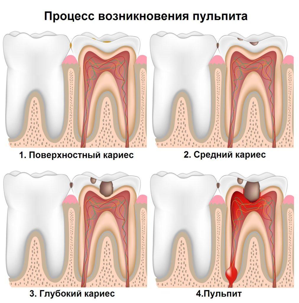 Если зуб успокаивается от горячего