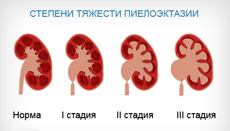Двухсторонняя пиелоэктазия у беременной