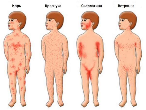 сыпь при кишечных инфекциях фото