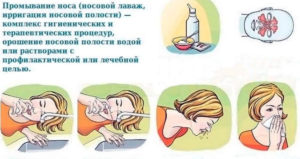 Чем промывать нос при насморке в домашних условиях у детей