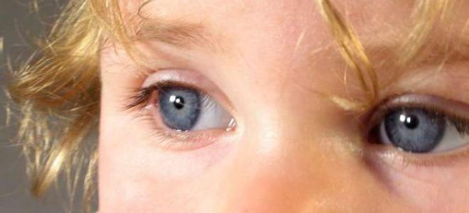 Ангиопатия сетчатки глаз: клинические проявления патологии у детей, диагностика