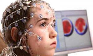 Что такое и как лечить резидуальную энцефалопатию у детей