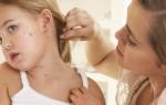 Появление красных пятен у ребенка на лице: как предотвратить и чем лечить