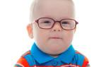 Типы косоглазия у детей: причины и способы лечения