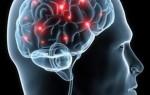 Эффективные методы лечения рассеянного склероза у детей