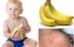 Развитие аллергической реакции на бананы у детей: почему возникает и как нужно лечить