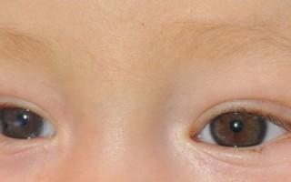 Основные симптомы врожденной катаракты, причины и лечение