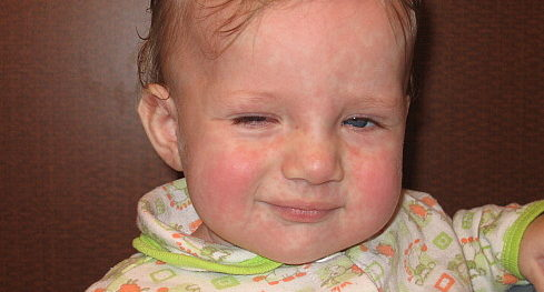 Сыпь при краснухе у ребенка