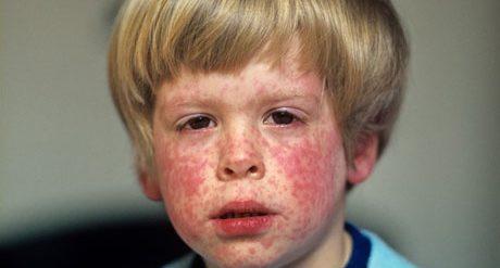 Сыпь при коре у детей
