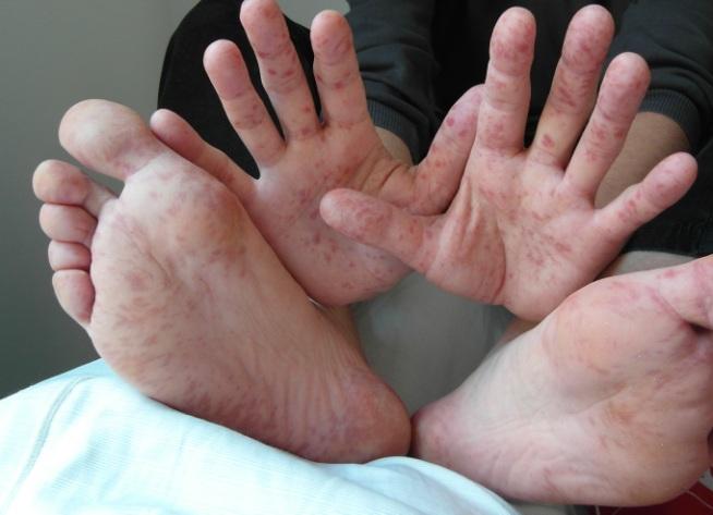 У ребенка сыпь на ступнях и ладонях - причины и лечение