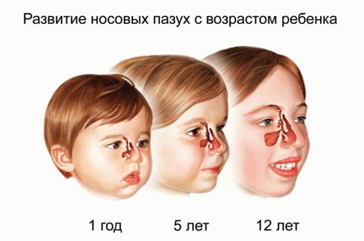 схема развития носовых пазух