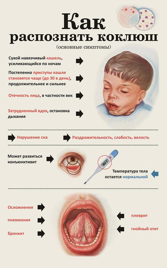 коклюш у детей симптомы и лечение - схема
