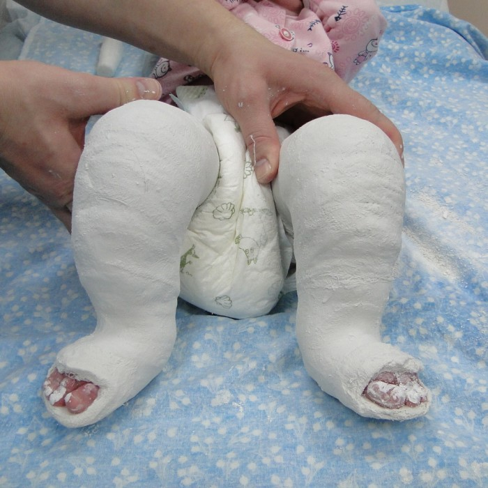 загипсованные ноги маленького ребенка