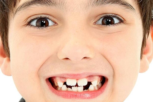 ребенок с неровными зубами