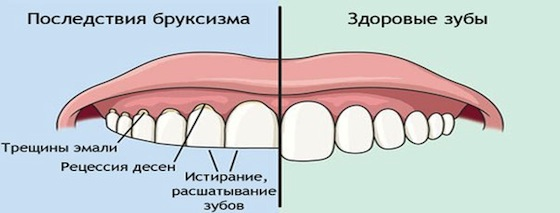 последствия скрежета зубами