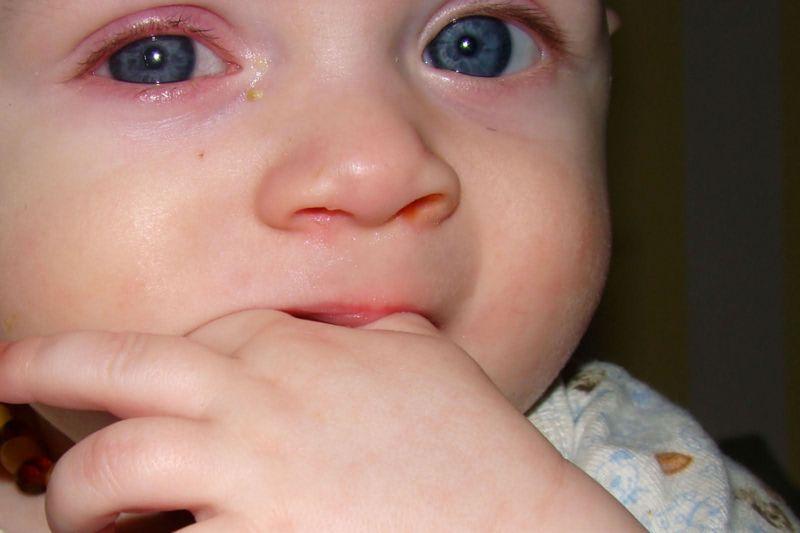 конъюнктивит у детей вирусный