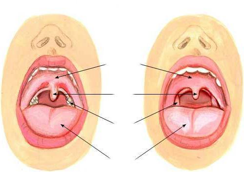как понять что у грудничка болит горло - схема осмотра