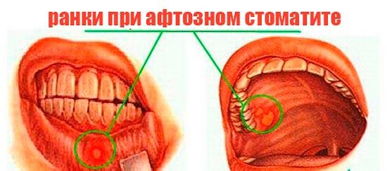 как выглядит афтозный стоматит