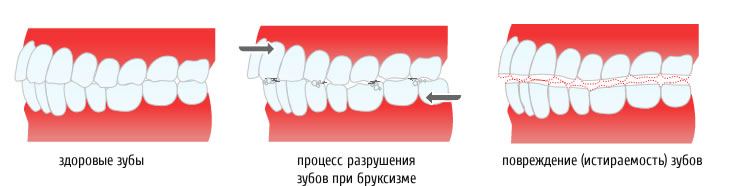 скрежет зубами во сне у ребенка причины - схема