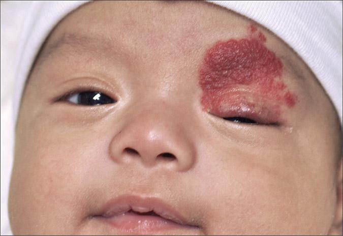 гемангиома у детей - реальное фото патологии