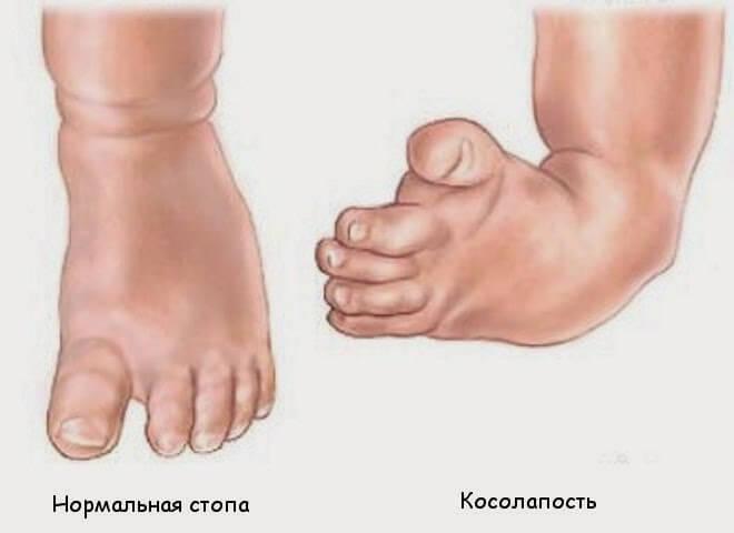 нормальная нога и нога с косолапостью