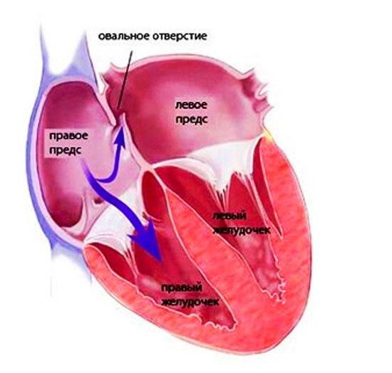 открытое овальное окно в сердце у ребенка - схема
