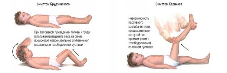характерные симптомы менингита