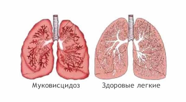 сравнение здоровых легких и легких при МВ