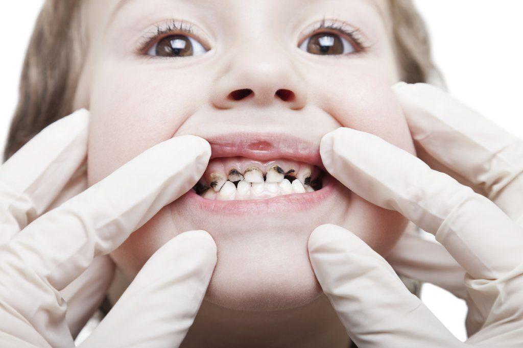 врач осматривает зубы ребенка