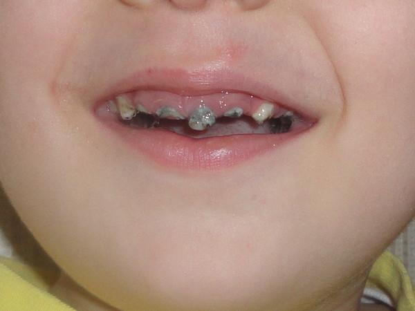черный налет у ребенка на верхних зубах