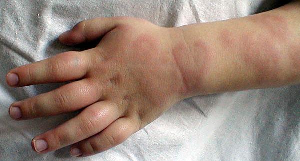 гранулема на руке ребенка