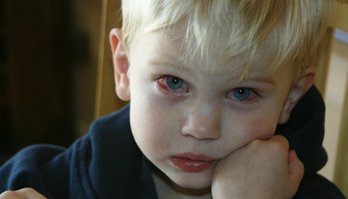 мальчик с красными глазами