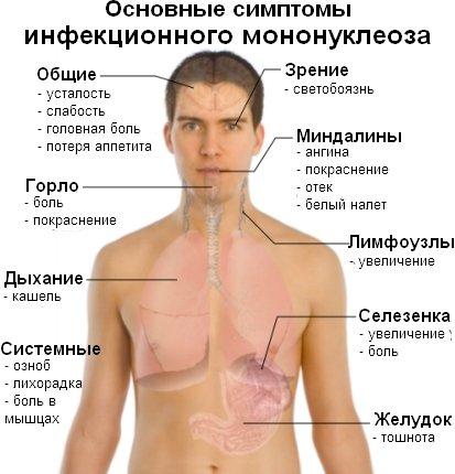 симптомы ВЭБ