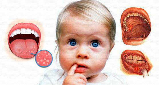 схема распространения стоматита у ребенка