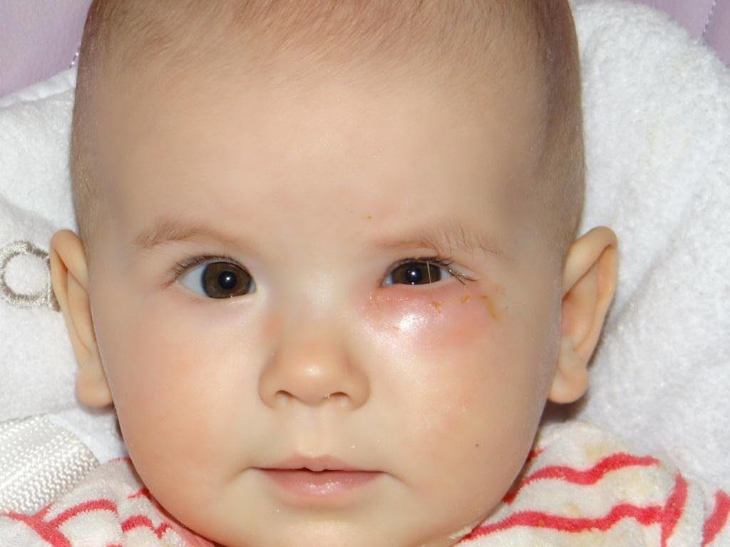 ребенок с воспаленным слезным каналом