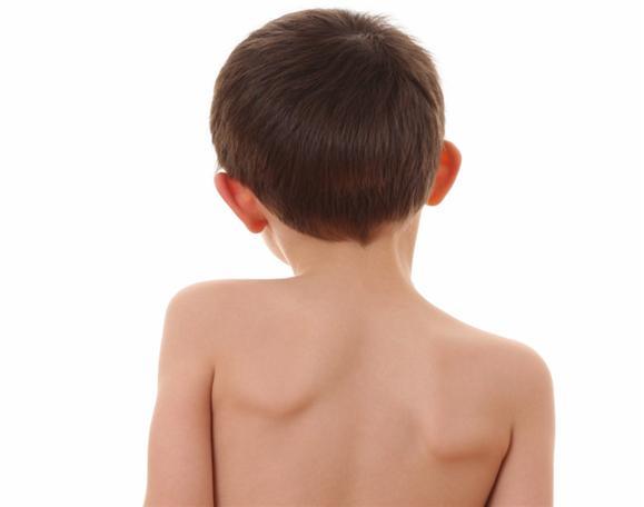 спина мальчика с сколиозом