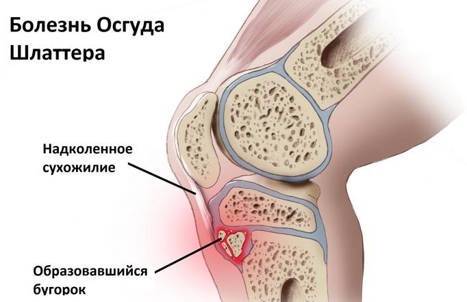 схема болезни Осгуда-Шлаттера