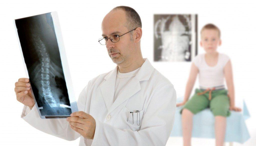 врач смотрит рентген позвоночника