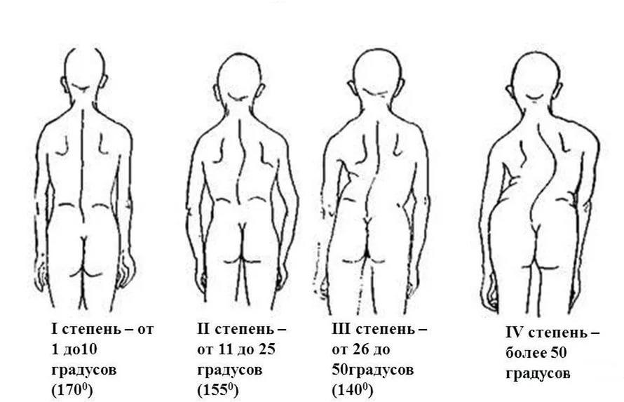 степени сколиоза у детей