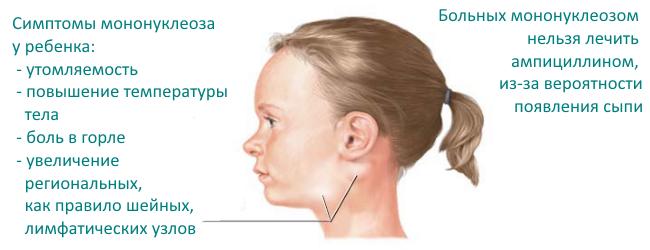 симптомы инфекционного мононуклеоза