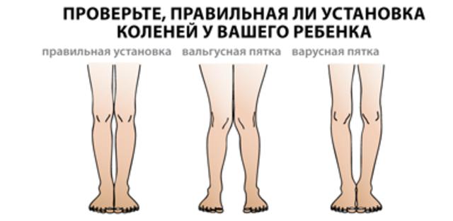 виды деформации ног