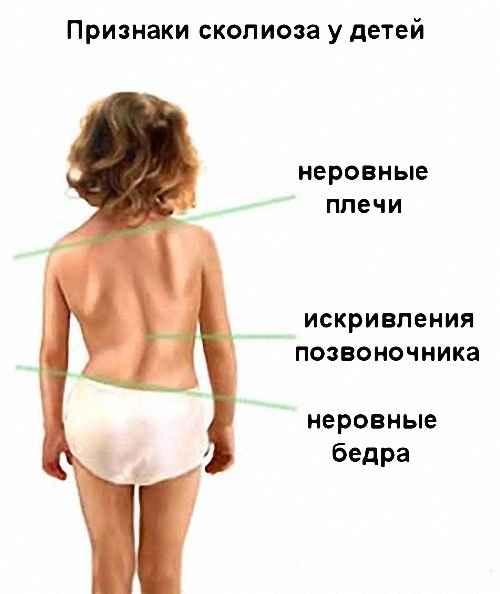 симптомы сколиоза у ребенка