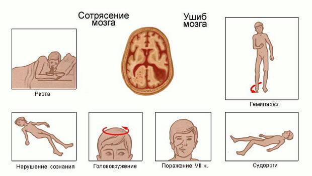 симптомы сотрясения и ушиба мозга