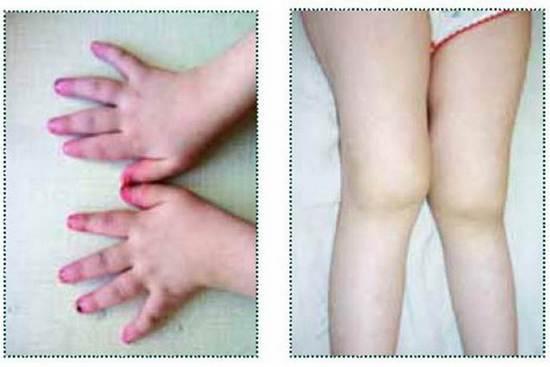 руки и ноги пациента с ювенильным артритом