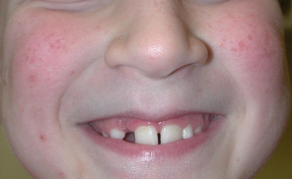 лицо ребенка с фолликулярным кератозом