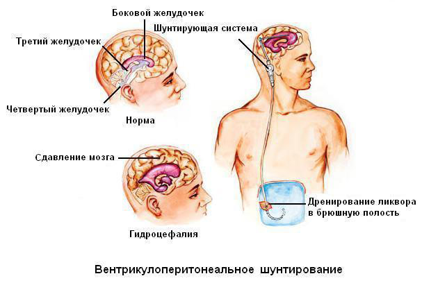 схема установки шунта при гидроцефалии
