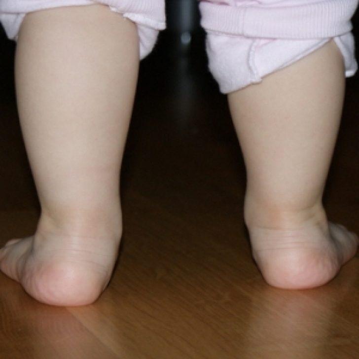 ноги ребенка с вальгусной деформацией