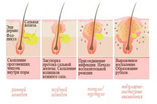 механизм развития кератоза